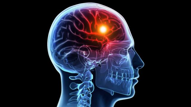 نتيجة بحث الصور عن السكتة الدماغية